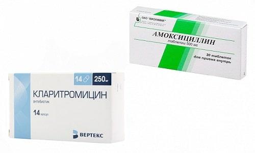 Амоксициллин или Кларитромицин