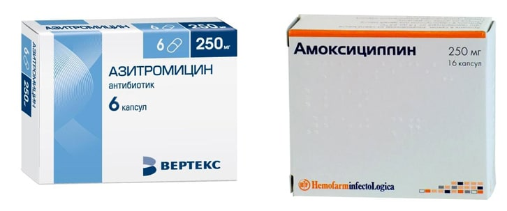 Амоксициллин или Азитромицин