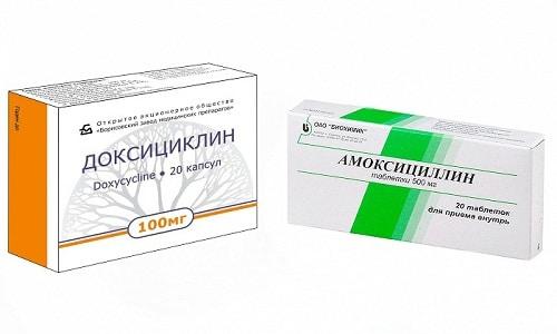 Амоксициллин или Доксициклин