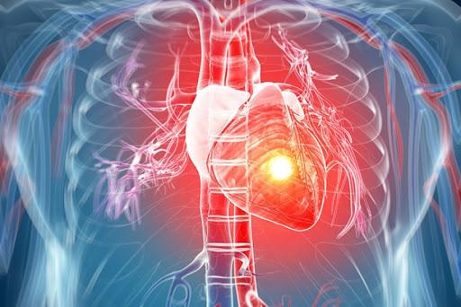Лекарство от инфаркта миокарда на основе Имозимама