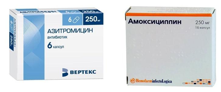 Азитромицин или Амоксициллин