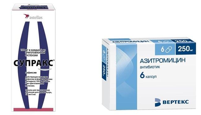 Азитромицин или Супракс