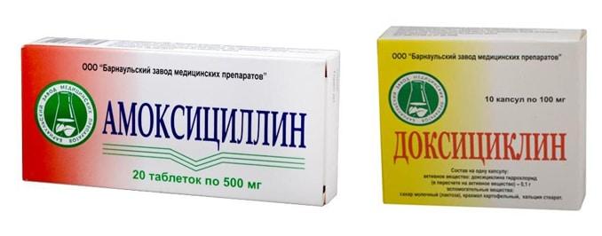 Доксициклин или Амоксициллин