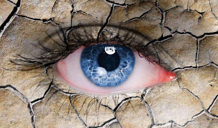 Синдром сухого глаза — Ксерофтальмия