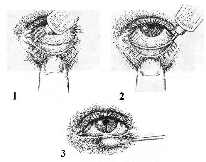 Как наносить мазь глазную Декса-Гентамицин