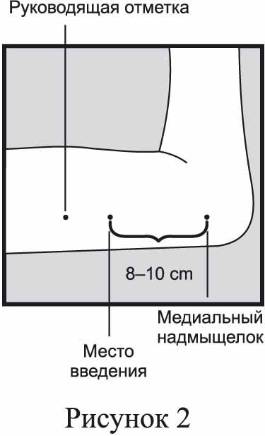 Обозначение места введения Импланона НКСТ