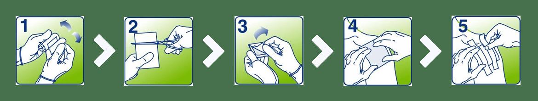 Применение повязки ПараПран
