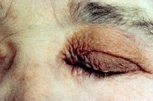 Амилоидоз: причины, симптомы, виды и лечение