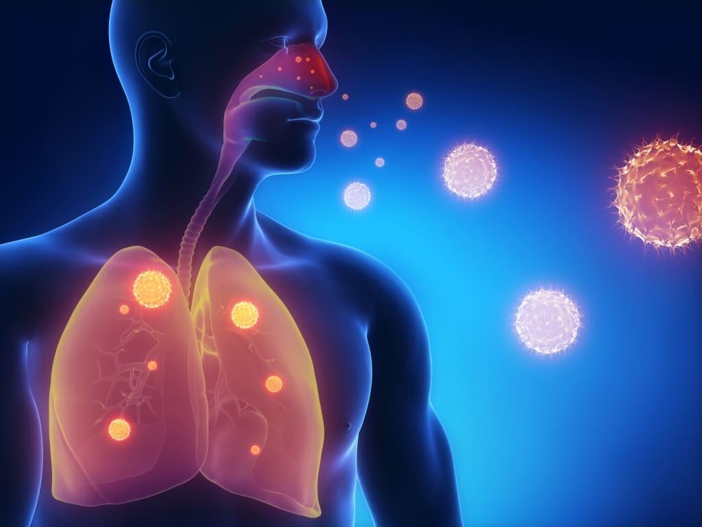 Лечение энтеровирусной инфекции у взрослых