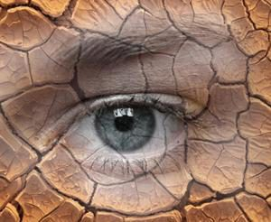 Синдром сухого глаза (ксерофтальмия): причины, симптомы, лечение и капли