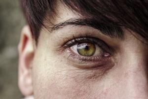 Почему появляются мешки под глазами