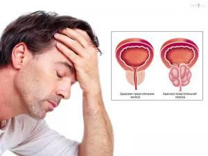 Аденома простаты: симптомы и лечение
