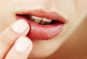 Простуда на губах: причины, симптомы и лечение