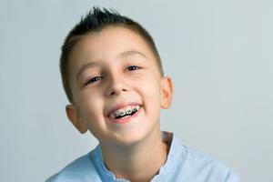 Как исправить неправильный прикус у ребенка
