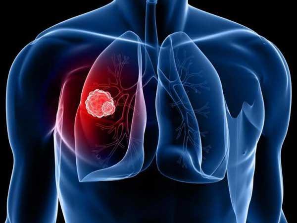 Что такое Туберкулез