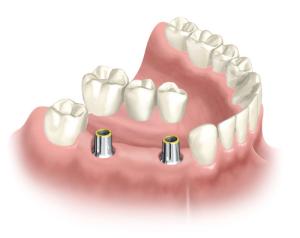 Чем опасно отсутствие зуба
