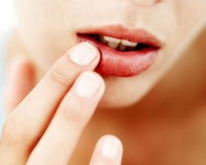 Герпес: симптомы и лечение