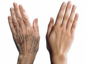 Лекарство от рака кожи замедляет процесс старения