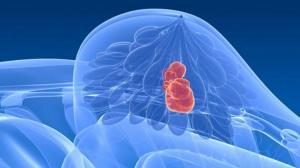 Простой тест предскажет риск метастазов рака груди в мозге