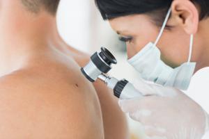 Меланома: признаки и лечение