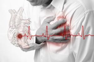 Острый инфаркт миокарда: причины, симптомы, осложнения и лечение