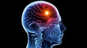 Ишемический инсульт: причины, симптомы и первая помощь