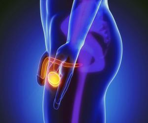 Водянка яичка (гидроцеле): причины и лечение