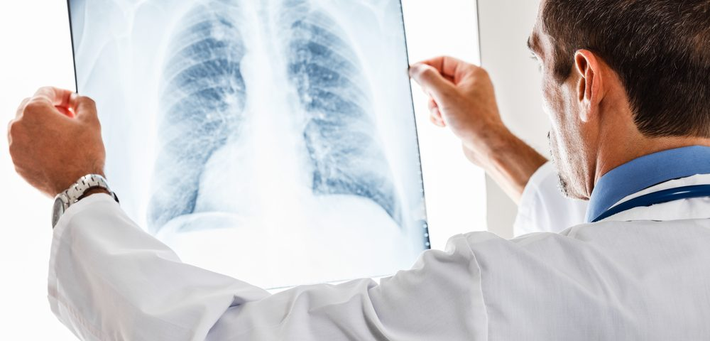 Лечение кашля без температуры у взрослого