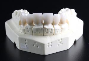 Виды зубных коронок и что такое «виниры»