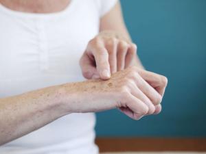 Пигментные пятна на руках: почему появляются как избавиться