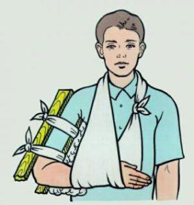 Первая помощь при переломах
