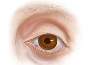 Ячмень на глазу: симптомы, лечение и профилактика