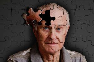 Что такое Болезнь Альцгеймера