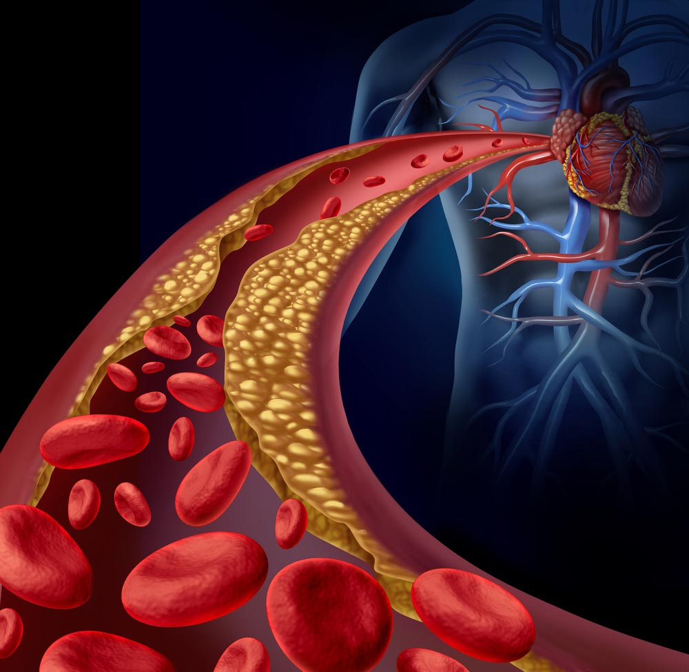Как повысить хороший холестерин и понизить плохой. Поднимаем ЛПВП до нормы