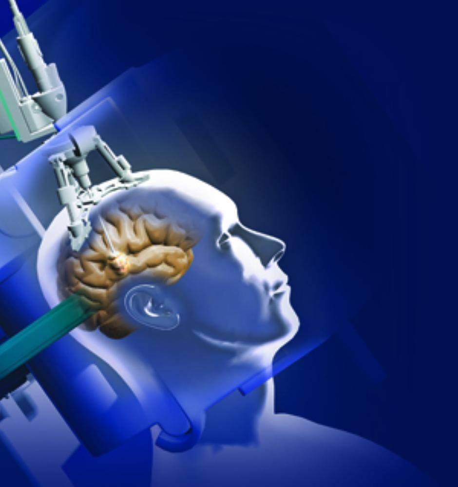 лазер при лечении болезни альцгеймера