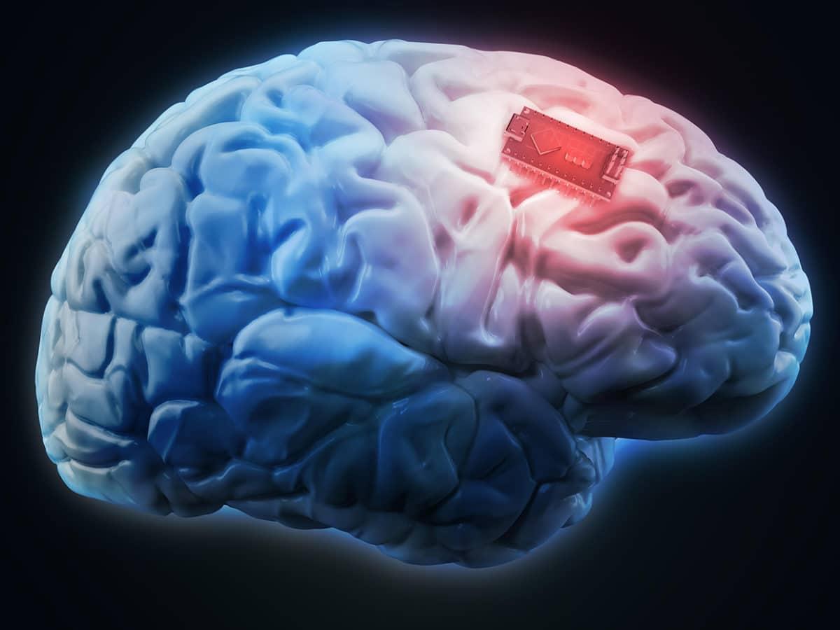 имплант в головной мозг