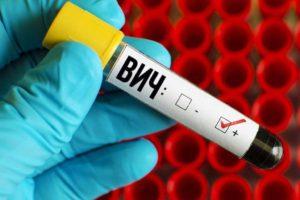 Испытания вакцины от ВИЧ