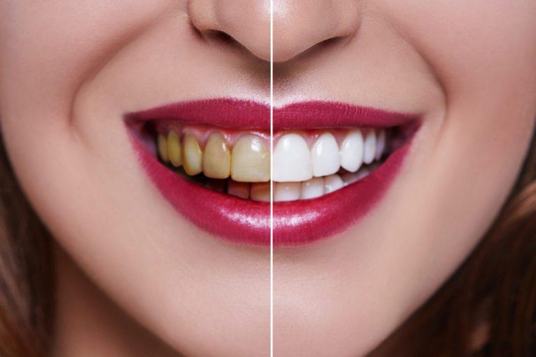 Как убрать желтый налет на зубах