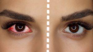 Вред нарощенных ресниц для глаз