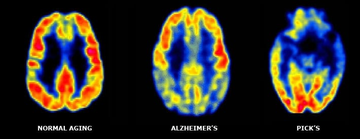 мозг: нормальный у пожилого, при болезни Альцгеймера, при болезни Ниманна Пика