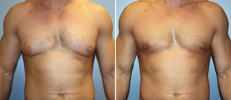 Результат после введения имплантата с тестостероном