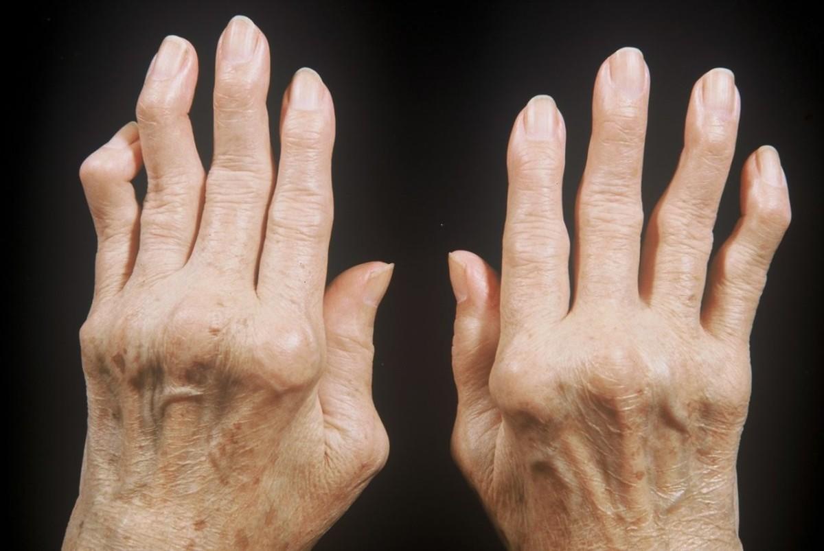 Псориатический артрит у взрослого