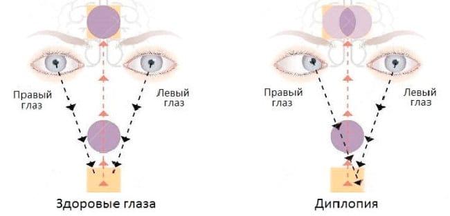 Двоение в глазах