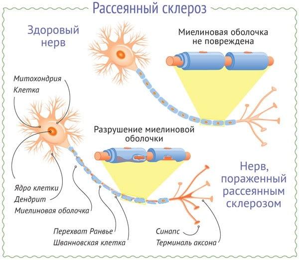 Механизм рассеянного склероза