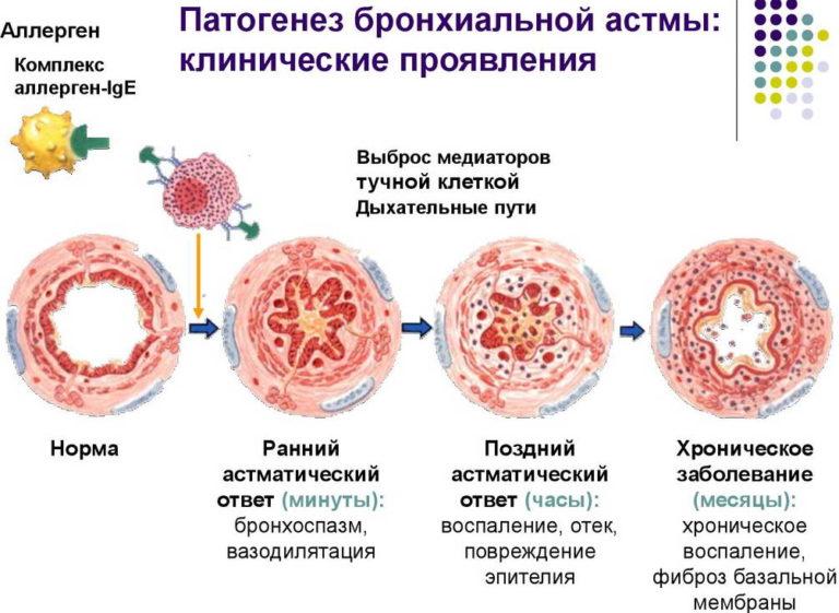 Патогенез астмы