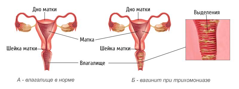 Трихомонадный вагинит