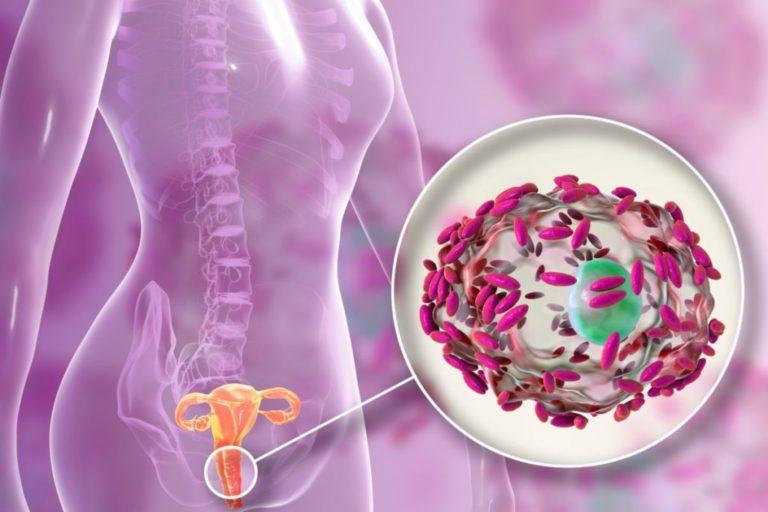 Кольпит (вагинит): причины, симптомы, классификация