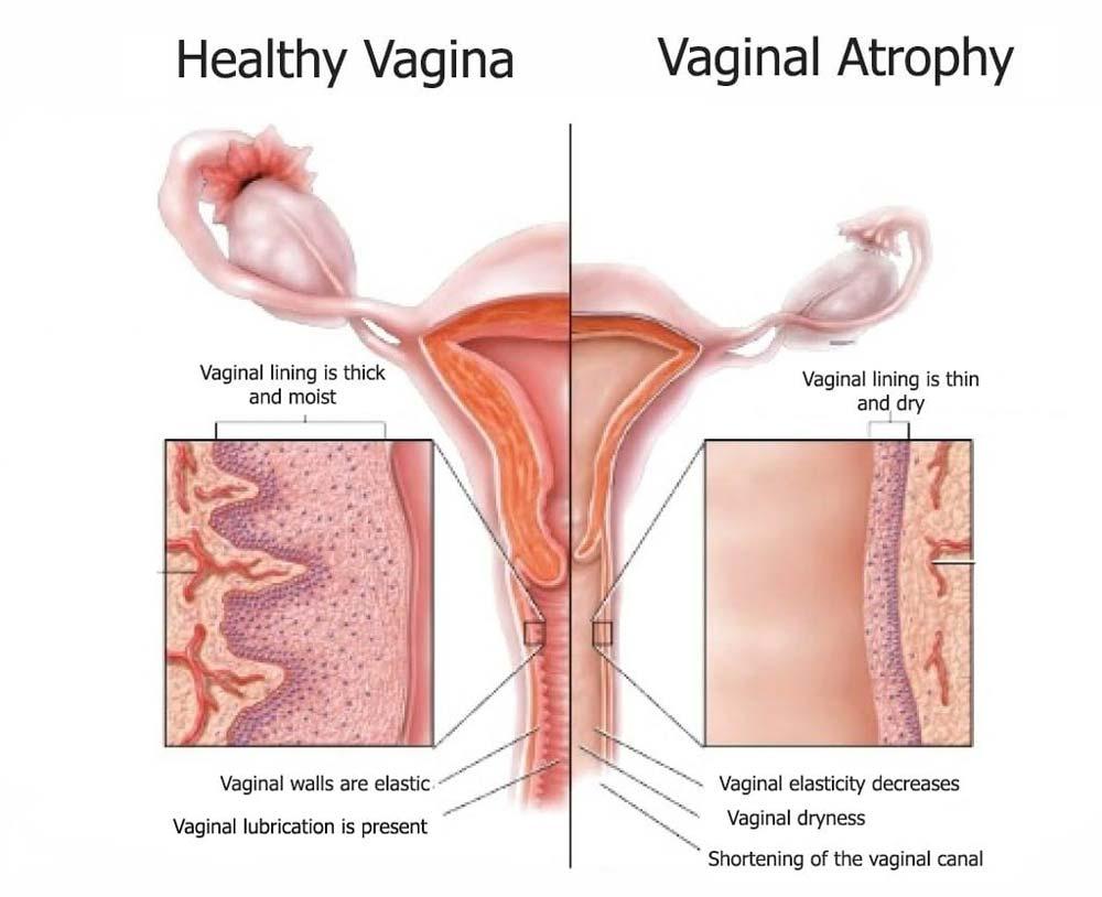 Атрофический вагинит