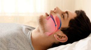 Апноэ во сне: у детей и взрослых, причины, симптомы и лечение