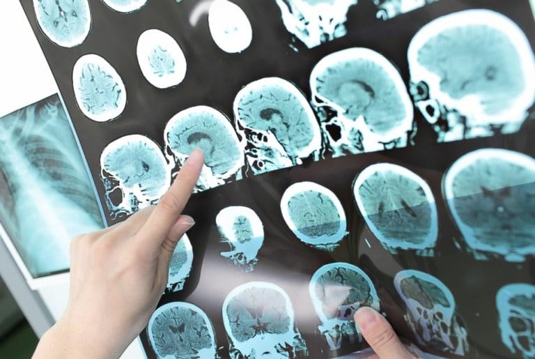 Рассеянный склероз: диагностика, профилактика и лечение